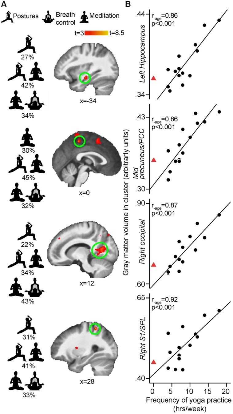 Yoga-Gehirn-Bleibt-Jung